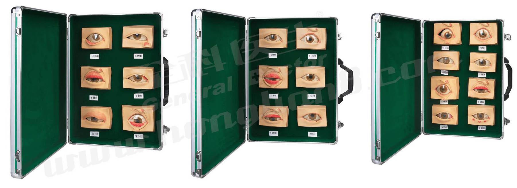 常见眼病模型是我公司自行研发生产热销的医学教学模型,欢迎各医院单位订购021-63283651