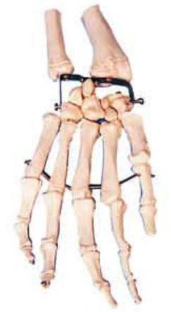 手掌骨模型A11126,手解剖模型
