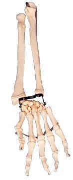 手掌骨带尺骨与桡骨模型A11125,尺骨桡骨