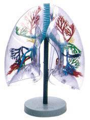 透明肺段模型A13009,新生儿肺透明膜病-找上海佳悦,专业生产医学模型厂家