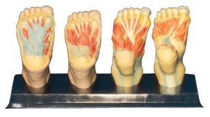 足底解剖模型A11313,足底肌肉解剖模型,人体足部模型
