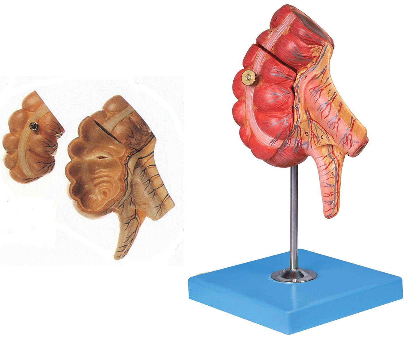 盲肠和阑尾解剖模型,盲肠和阑尾模型A12006-找上海佳悦,专业生产厂家