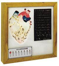 心脏传导系电动模型A16007-1,心脏电动模型-找上海佳悦,专业医学模型生产厂家