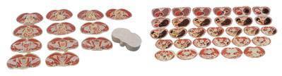 男性躯干横切面断层解剖模型A30002-上海佳悦公司:021-63283651 中国领先的医学教学模型设备制造厂家