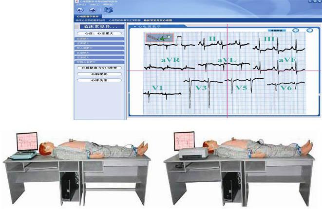 高智能数字网络化心电图模拟教学系统